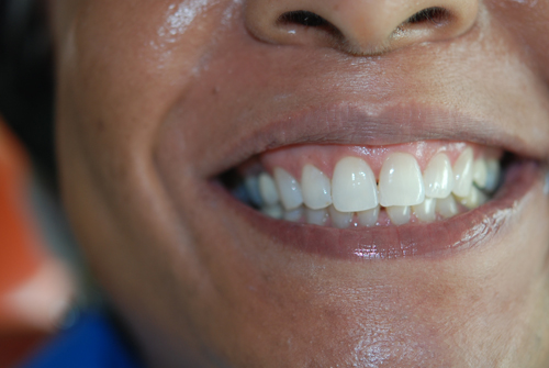 32 Smile Stone Zoom Teeth Whitening after1