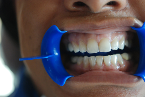 Dental Clinic Before Zoom Teeth Whitening