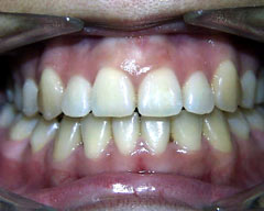 32 Smile Stone Braces used to correct crowded teeth