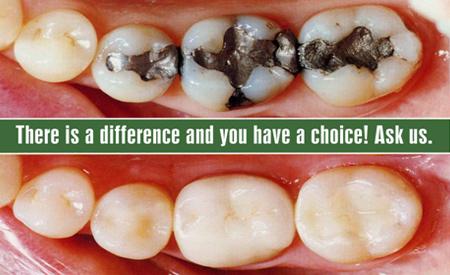 Dental Filling Cost Composite Dental Fillings Delhi
