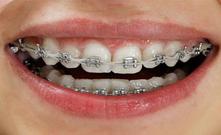 32 Smile Stone Metal Braces