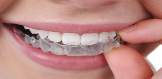 32 Smile Stone Clear Aligners