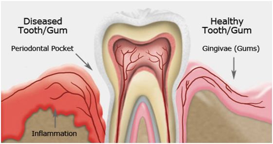 teeth cleaning cost