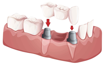 32 Smile Stone Dental Bridge