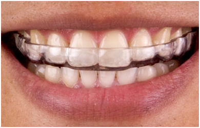 Dental Implants Delhi Tooth Implant Cost In Delhi