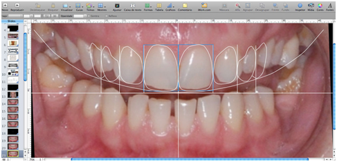 steps involved in smile designing