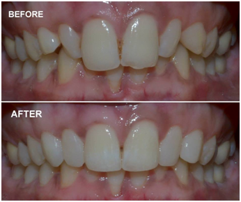 cosmetic smile designing Before & After